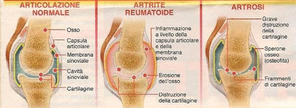 Fattori dell'artrosi