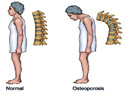 situazione normale e con osteoporosi